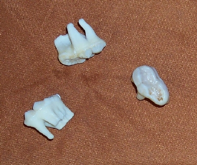 Picture of this lot Black Bear Teeth, canines, molars, incisors, tooth