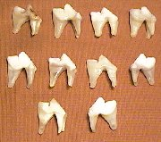 Picture of this lot Coyote Teeth, Canines, Molars